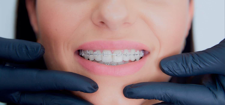 Stomatologia specjalistyczna ortodoncja