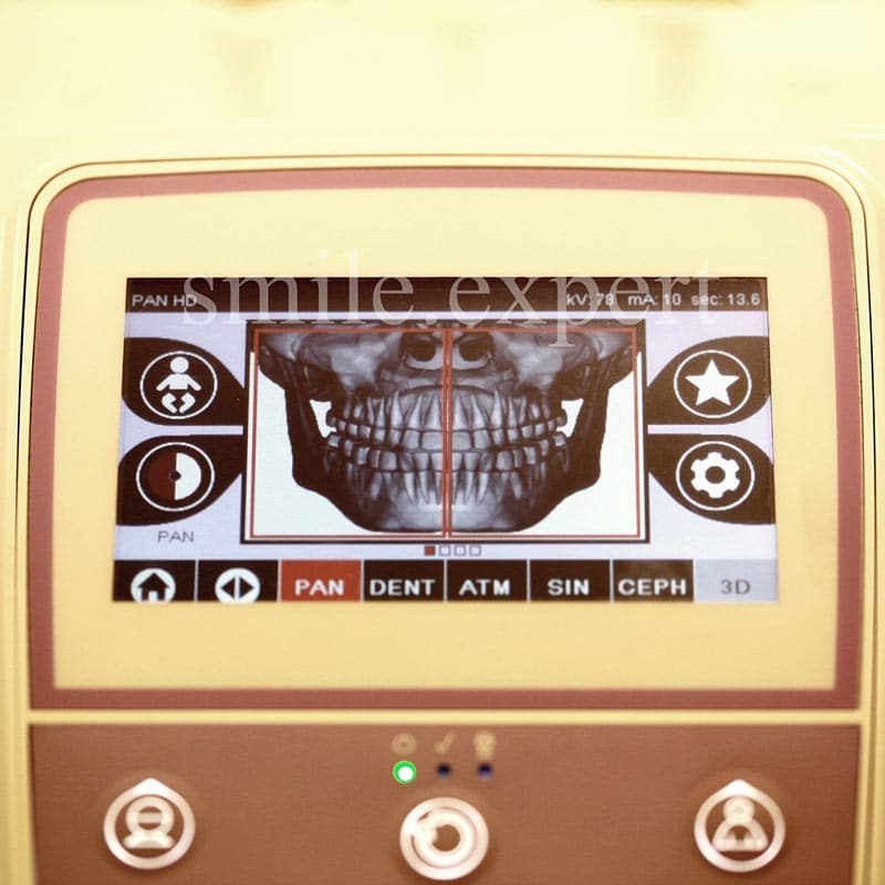 Pantomogram – kiedy wykonać panoramiczne zdjęcie zębów?