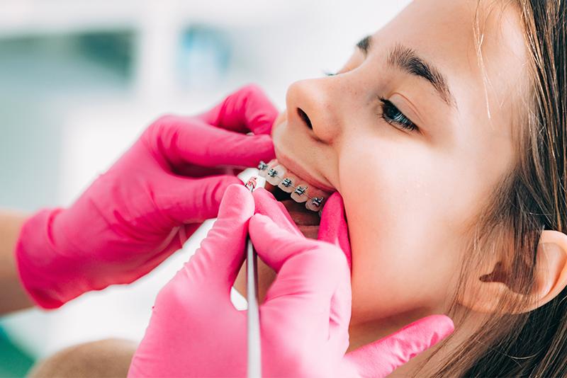 Ortodonta dbający o higienę aparatu ortodontycznego podczas wizyty u dziewczynki