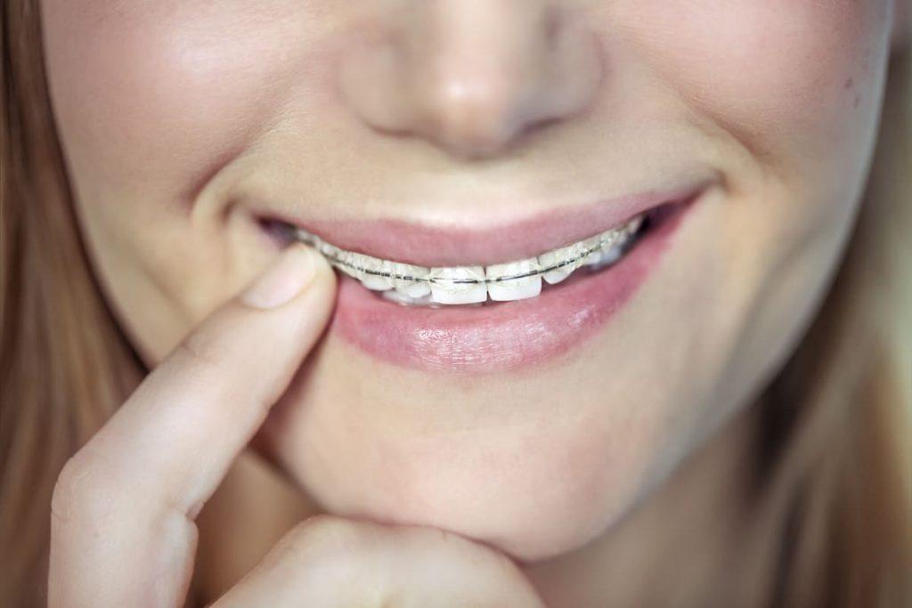 Uśmiechająca się kobieta z aparatem na zęby